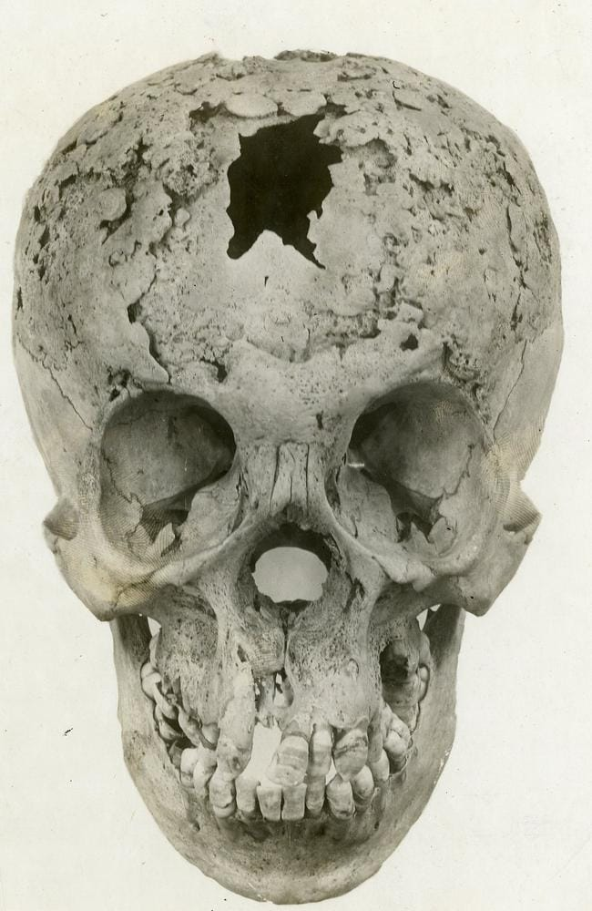 Syphilis of skull. Picture: Otis Historical Archives Nat'l Museum of Health & Medicine
