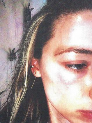 Bruising on Amber Heard's face she claims was inflicted by Johnny Depp.