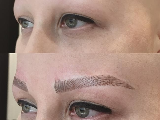 Eyebrow Tattooing Before And After Katie Hales Alopecia Journey