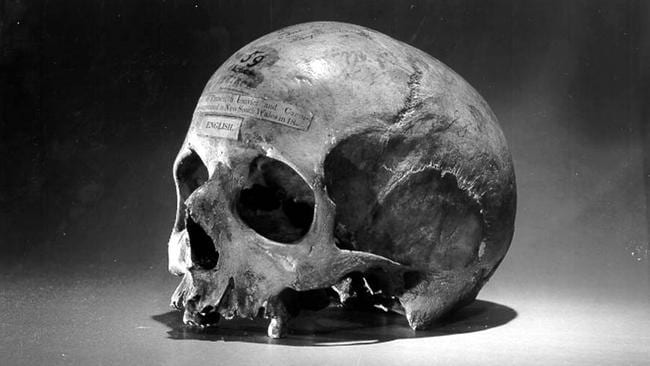 Food for thought … the skull of Cannibal Convict Alexander Pearce.