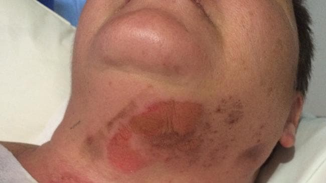 Trish Rayment suffered multiple burns after taking a firecracker in the chest on . Picture: Supplied.