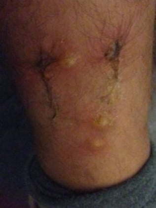 He developed welts and blisters on his legs. Picture: Patrick Rose/Shine Lawyers
