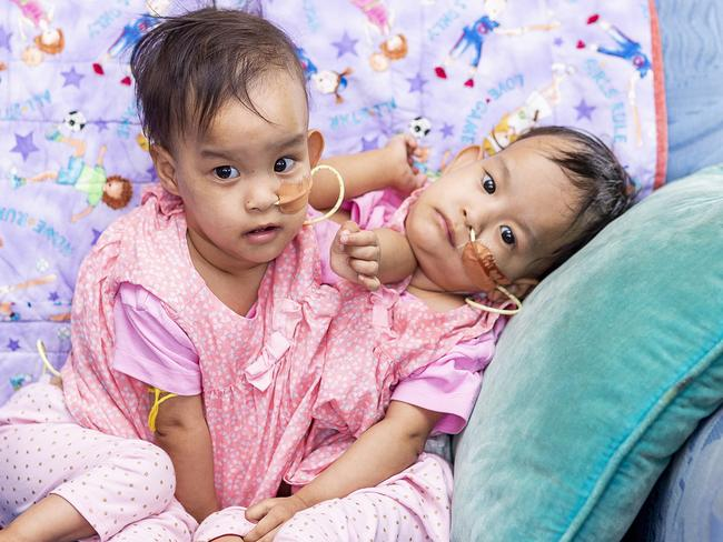 Conjoined twins Nima and Dawa are 15 months old. Picture: Daniel Pockett