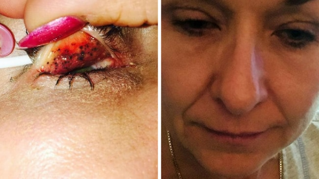 eresa Lynch went to the doctor after her eyes started causing her trouble. Picture: Caters