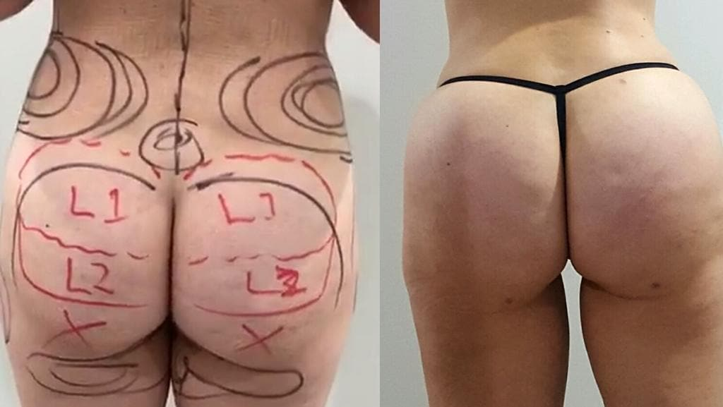 Before and after shots of a doctor, 35, who had a Brazilian butt lift