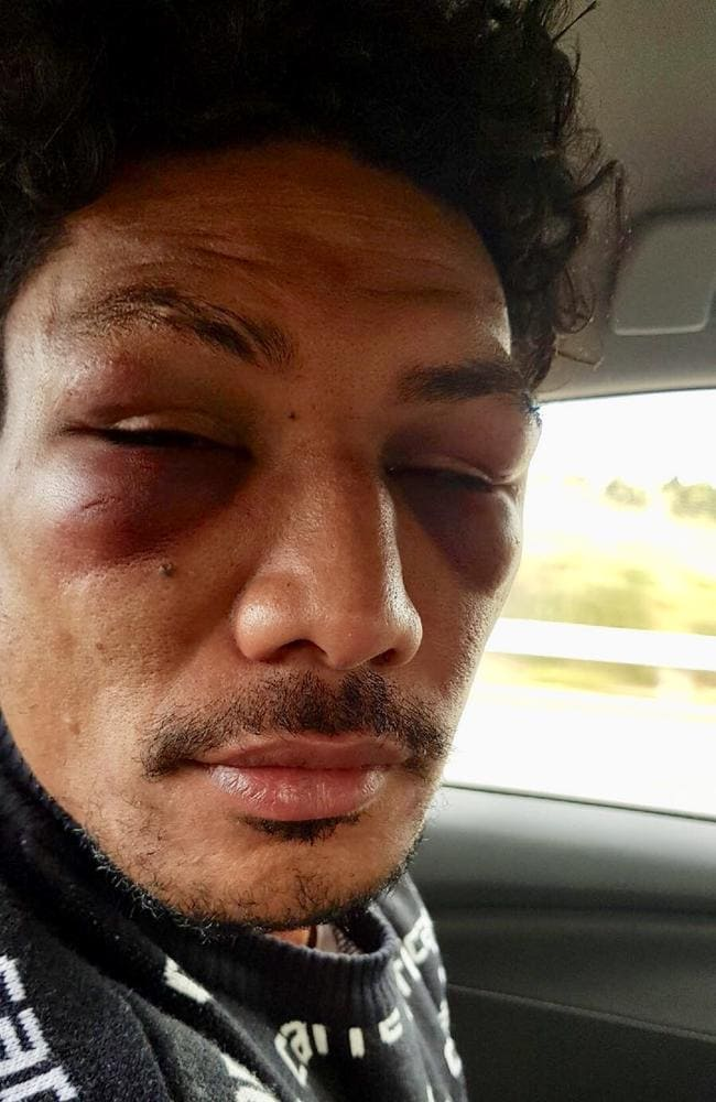 Lopeti Timani the day after an altercation with former Rebels teammate Amanaki Mafi in Dunedin. Supplied: Daily Telegraph.