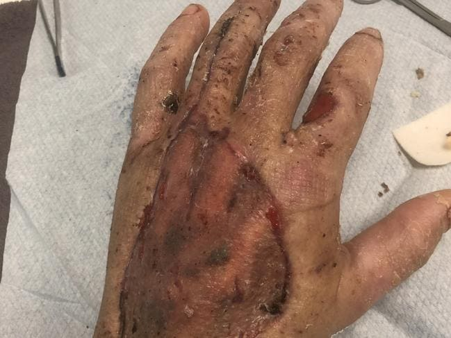 Doctors had to continuing slice open Mr Taylor's arms and hand to scrape out the dead flesh. Picture: Picture: Glenn Hampson