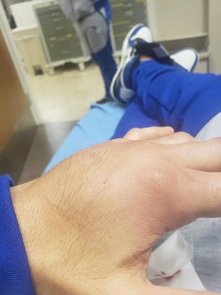Malignaggi shows off the damage to his left hand.