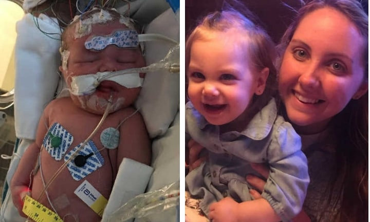 Mum shares emotional story of baby girl born with brain injury