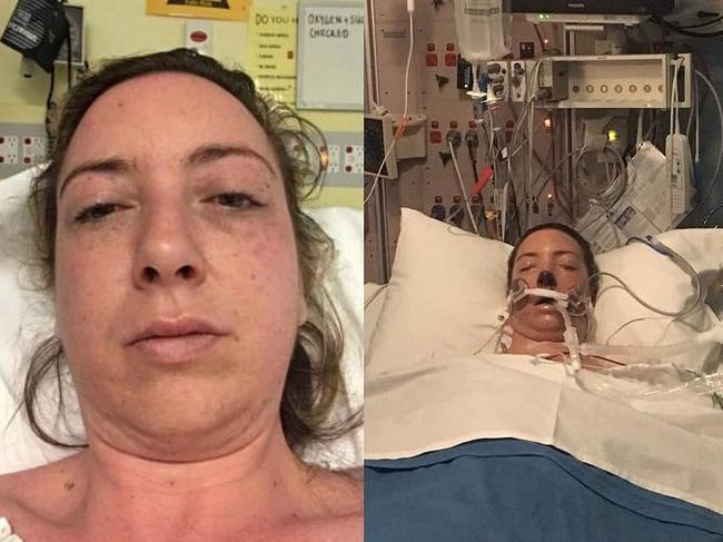 She had to be placed in life support when she got to the hospital. Picture: Sarah Joyce/Supplied