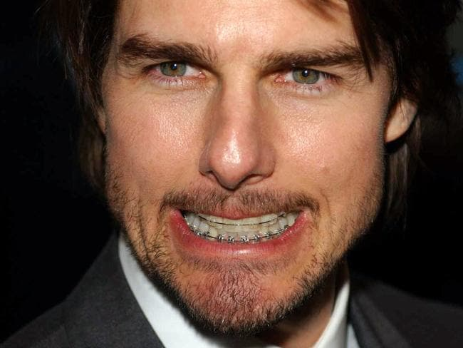 Tom Cruise at the London premiere of his film Minority Report in 2002, sporting a full set of braces. Picture: AP PicMyung/Jung/Kim