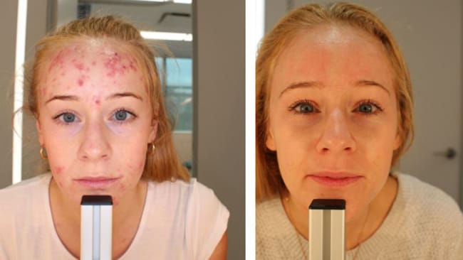 post pregnancy acne a treatment that actually worksveronique king before and after her kleresca® acne treatment source bodyandsoul
