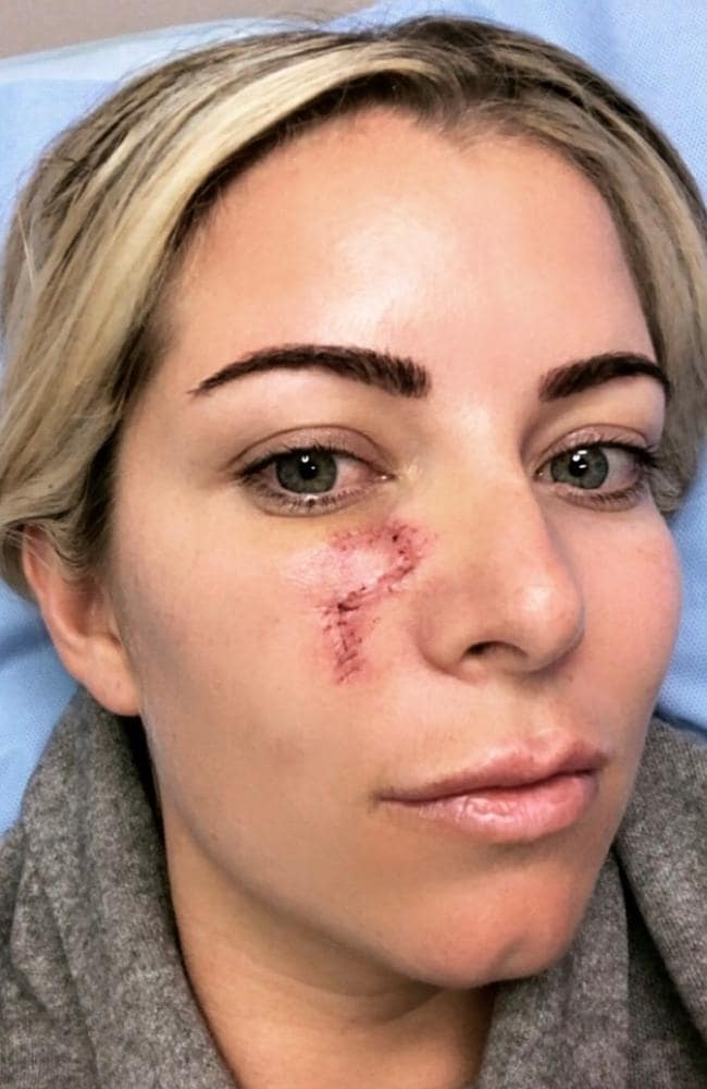 Kirstie Webster said she was shocked to discover a blind pimple under her eye was, in fact, skin cancer. Picture: Supplied