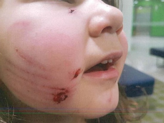 The dog, which appeared to be a staffy, scratched and bit Daphne's face. Picture: Supplied