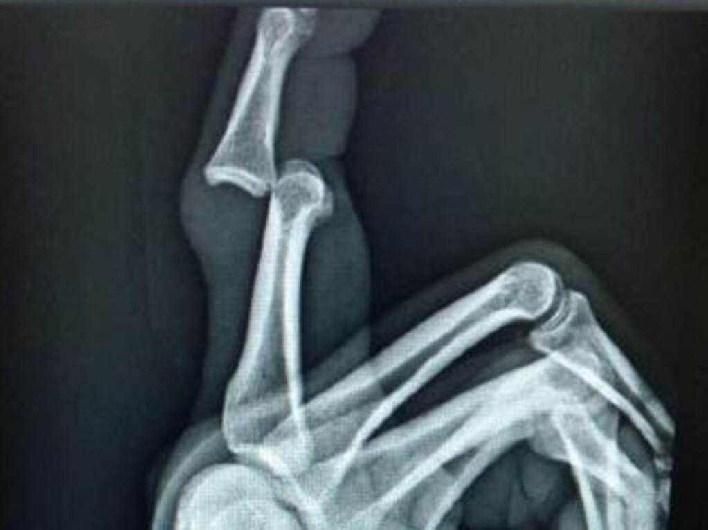 An x-ray over Trent Merrin's badly injured finger.