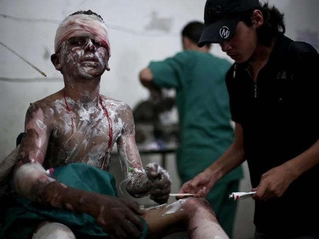 Another Syrian boy, caught in the same explosion. Photo: ABD DOUMANY