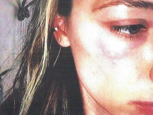 Photographs of bruising on Amber Heard's face were presented to Los Angeles Superior Court when the actor applied for a restraining order against her estranged husband. Picture: Splash News