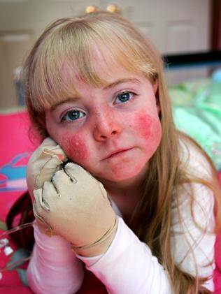 Eliza Baird, pictured aged six, had a rare skin condition and needed her limbs bandaged after having her daily bath. The bandages cost $3000 a month and are not covered by PBS.
