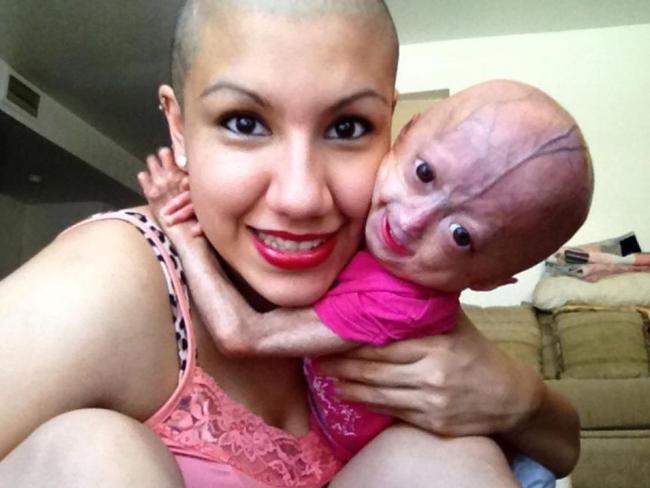 dalia rose  Adalia Rose: 11yo girl with rare aging condition goes viral on YouTube