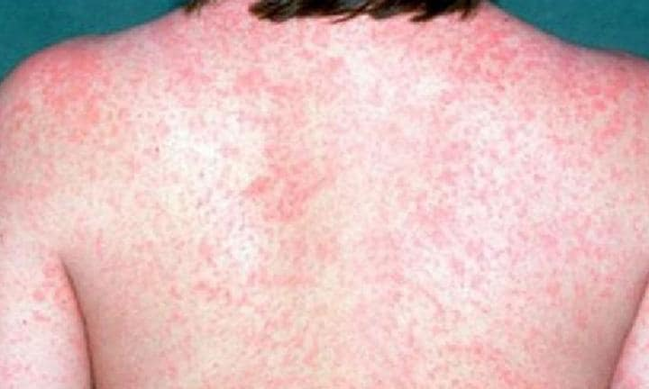 MEASLES ALERT: NSW Health issues warning for Sydney