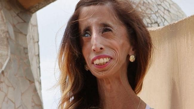 Lizzie Velasquez: Why I'm not the 'the ugliest woman in ...