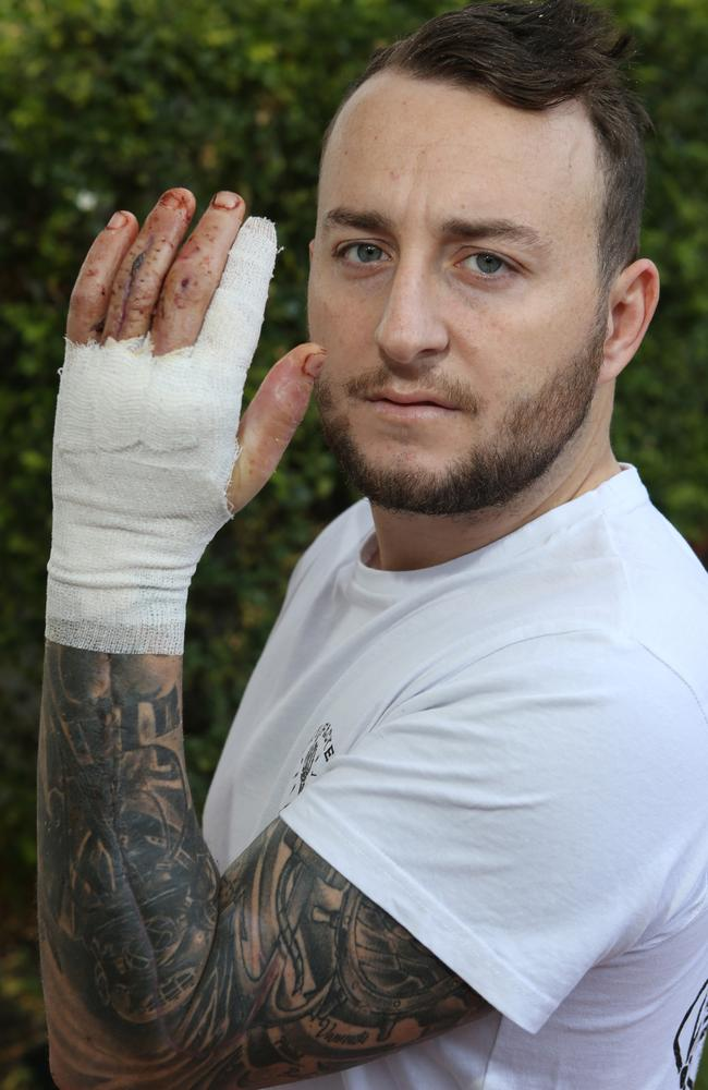 10 surgeries later, Ryan Taylor is on the road to recovery. Picture: Glenn Hampson