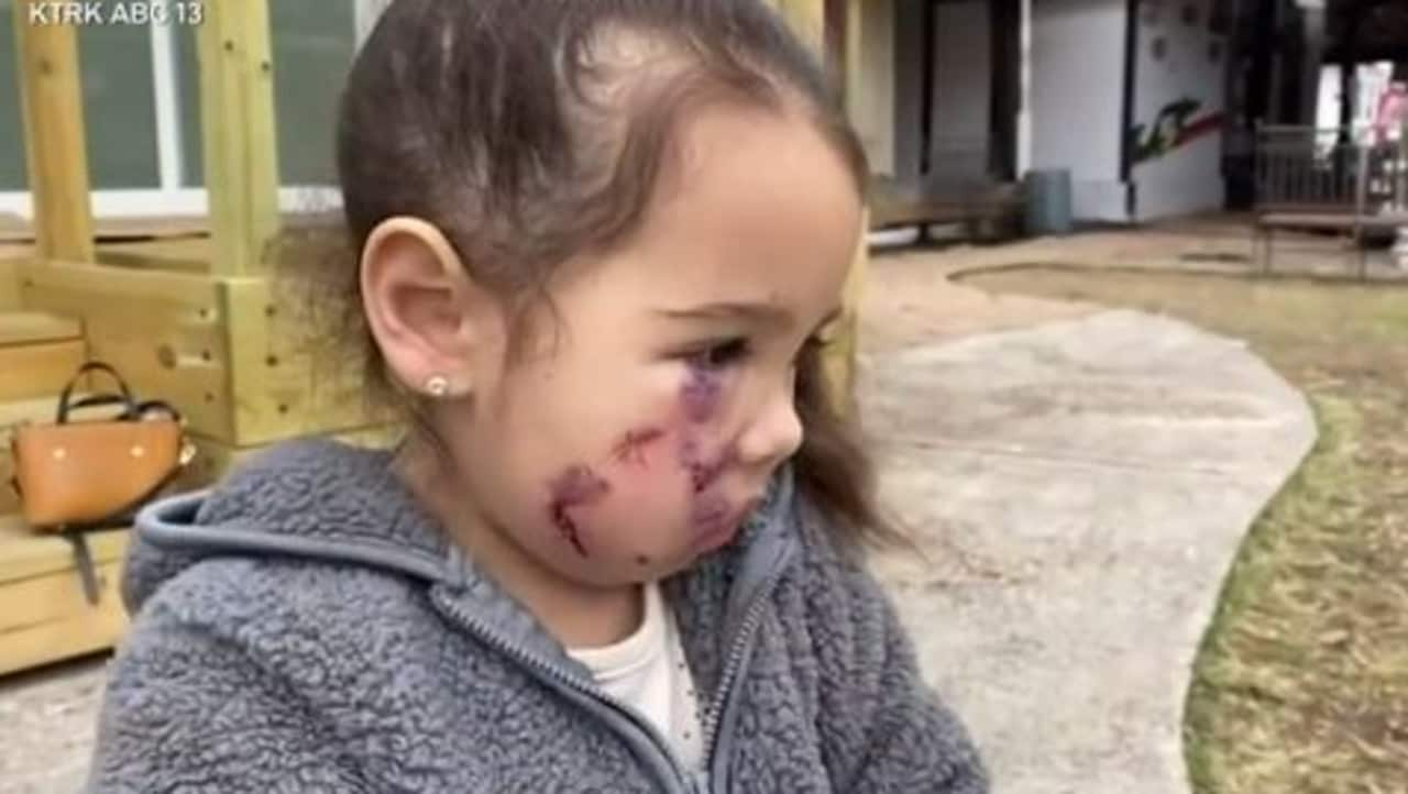 Girl 3 mauled by a pit bull wearing a service animal vest – NEWS.com.au
