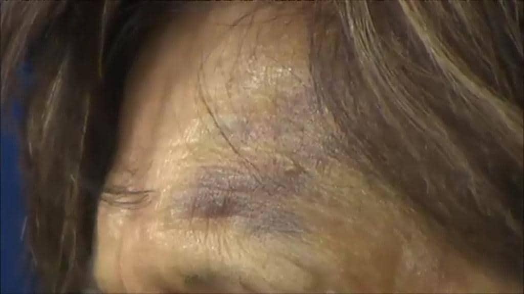 Elderly Woman Bashed Robbed In Brunswick Toilet Block Herald Sun