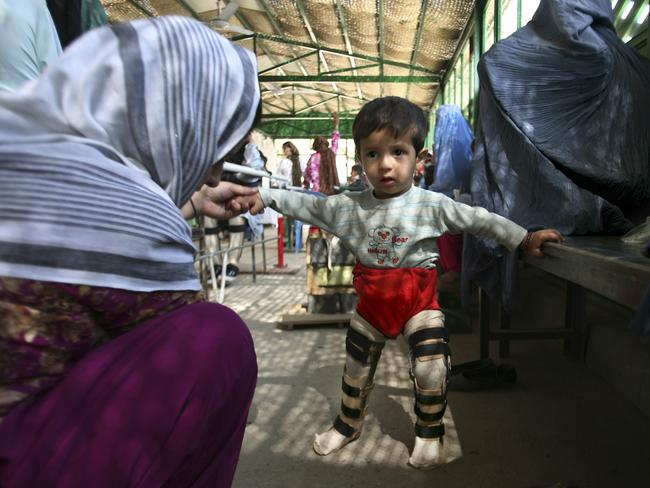 An Afghan child, suffering from polio, is helped by his mother.