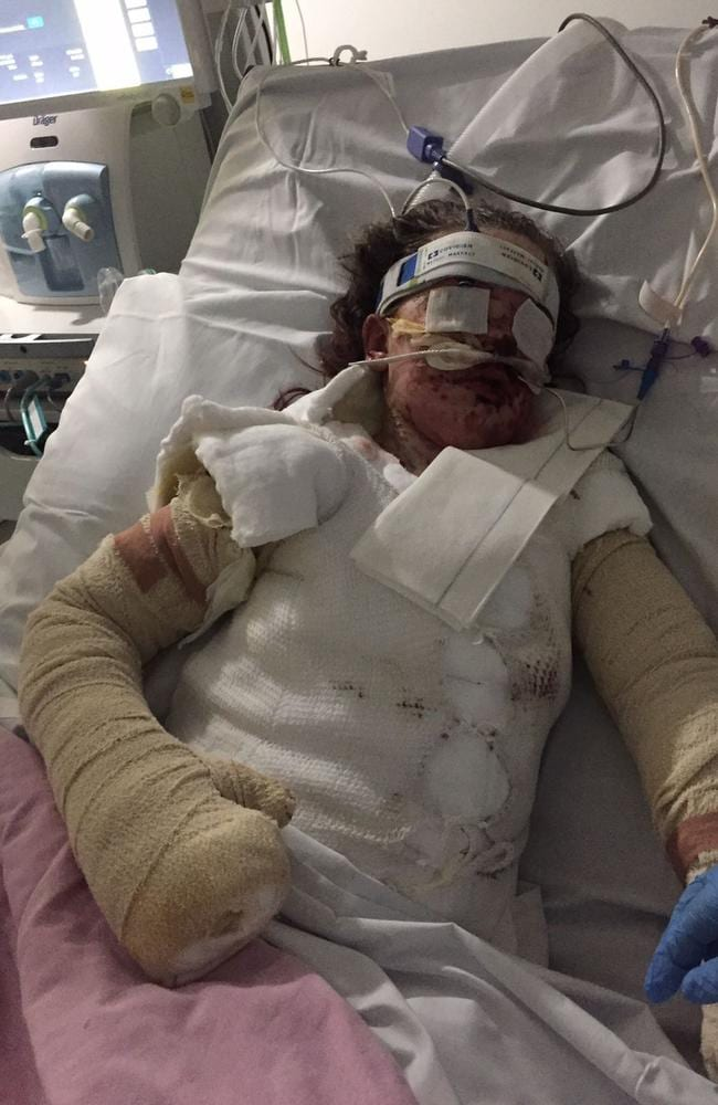 The little girl suffered burns to 65 per cent of her body.