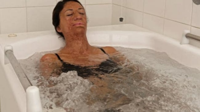 Turia visited the Avene Hydrotherapy Centre in France in 2018 and will be making a return trip this year. Source: Supplied