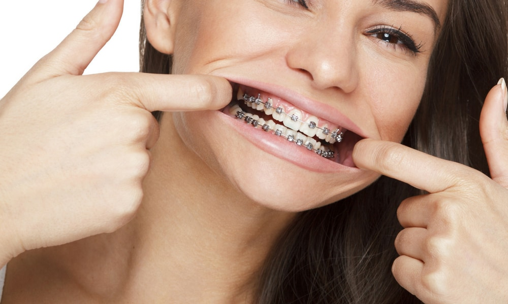 Save money on braces how to save thousands at the orthodontist medicares child dental benefits schedule does not cover any kind of orthodontic or cosmetic dental procedures solutioingenieria Image collections