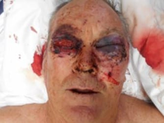 Police today released new images of Mr Tennant's injuries.