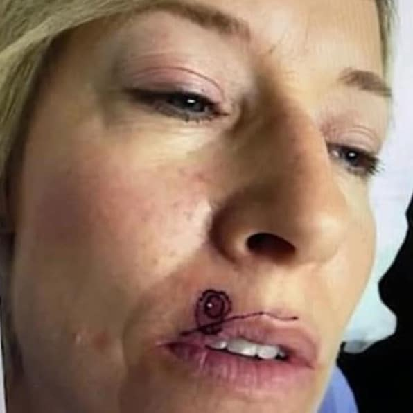 Tracy French, from Arcadia in Canada, spotted a 'pimple' on her upper lip a few years ago but never thought anything of it. Picture: KABC 7