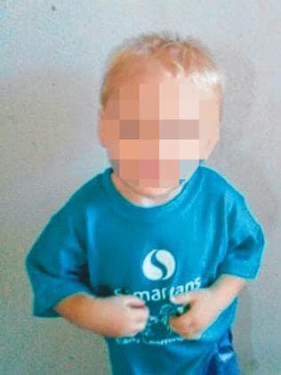The little boy underwent emergency surgery.