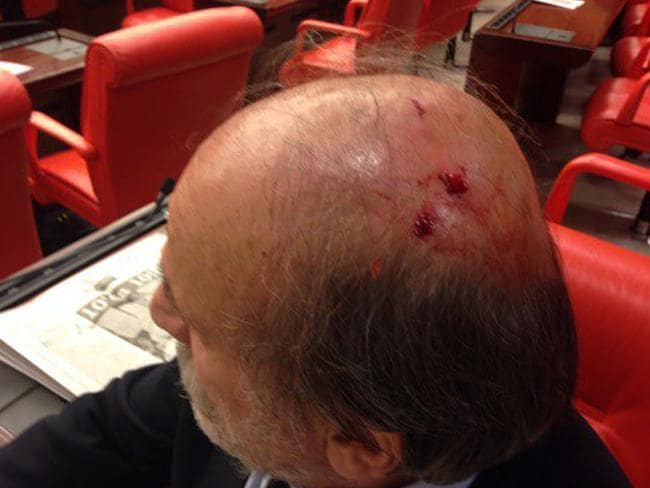 Ertugrul Kurkcu, an opposition lawmaker, listens to a debate after being injured during the brawl.