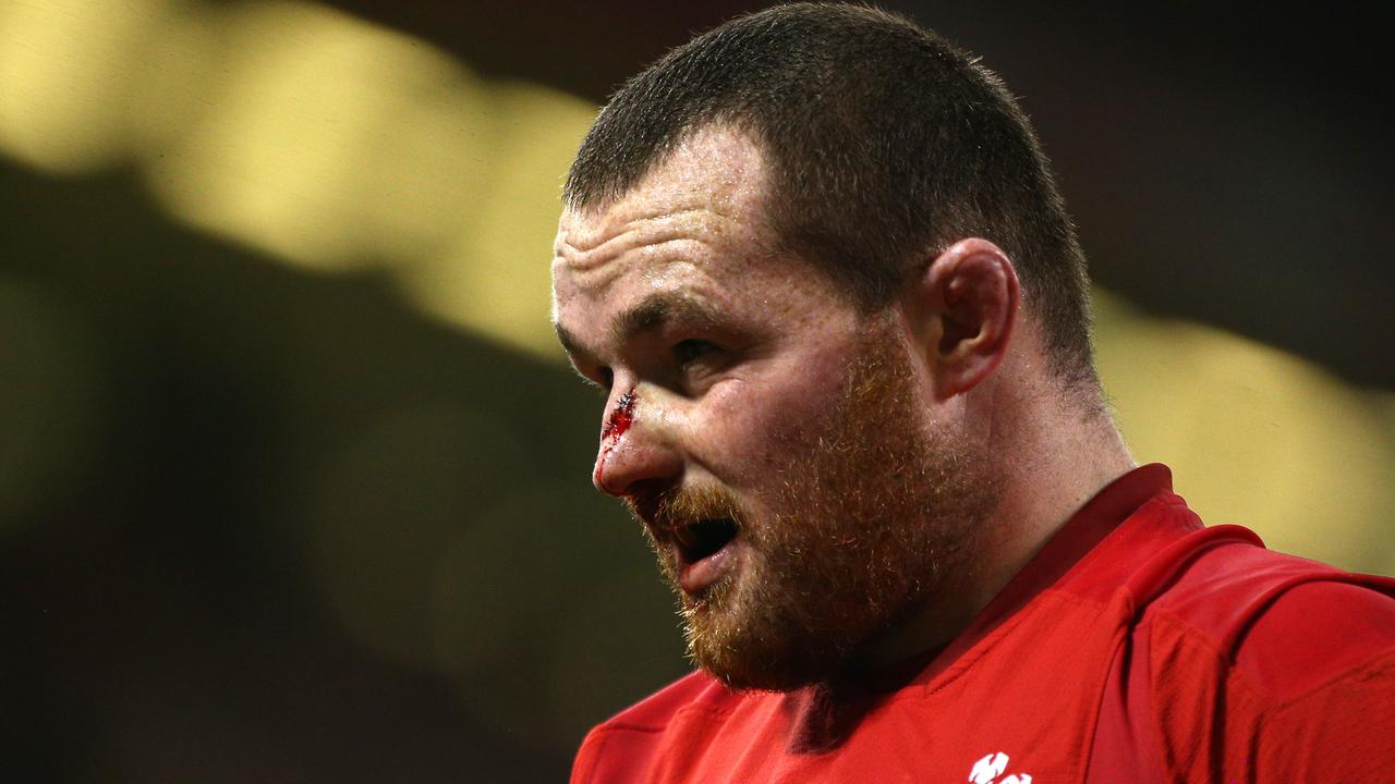 Ken Owens of Wales broke his nose against Scotland at the Principality Stadium in Cardiff.