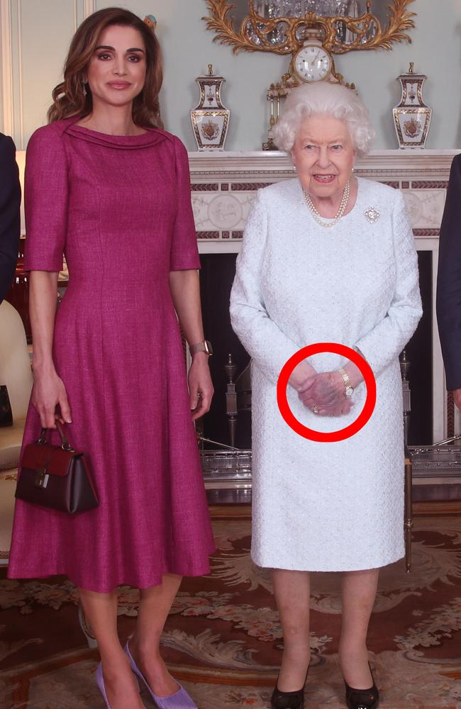 Queen Elizabeth has a bruised hand: Buckingham Palace photos reveal