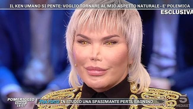Mr Alves recently appeared on an Italian talk show, revealing his nose might be collapsing following his 11th procedure. Picture: Domenica Live