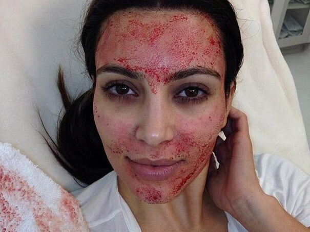 Kim Kardashian has had a vampire facial before. Picture: Instagram