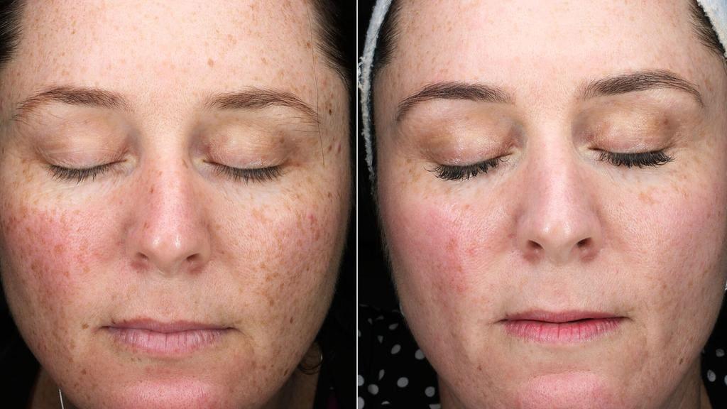 Pico Genesis Laser 30 Minute Treatment Gives Best Skin