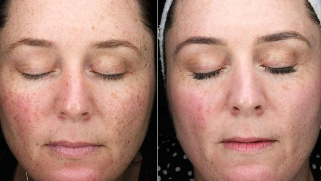 One of Crystal's clients, before and after treatment.