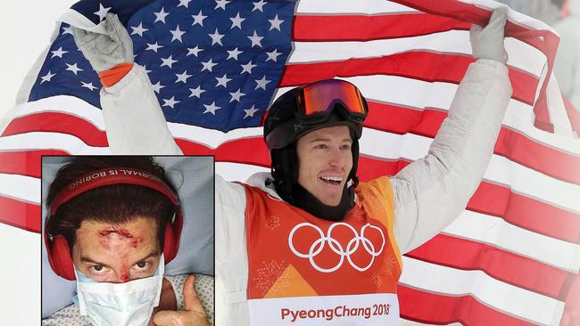 Shaun White came back from huge smash this season to win gold.