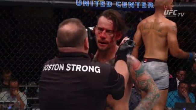 CM Punk was opened up and exposed