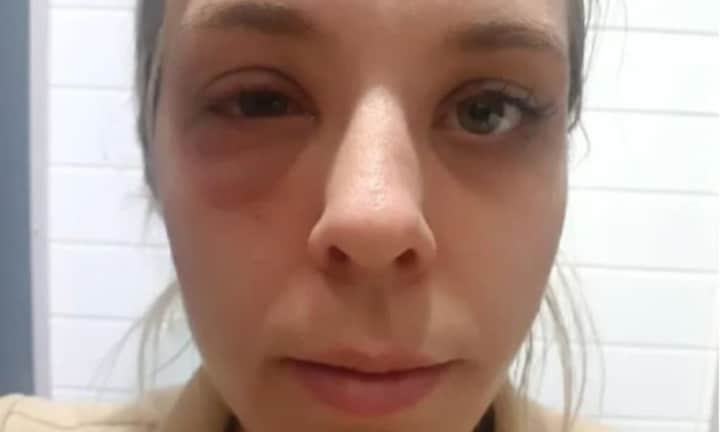Mum's horrific nut allergy ordeal on board a plane with her kids