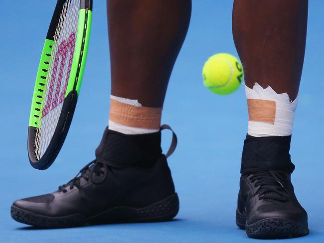 Serena Williams has been plagued by ankle injuries for several years. Picture: Michael Dodge/Getty Images