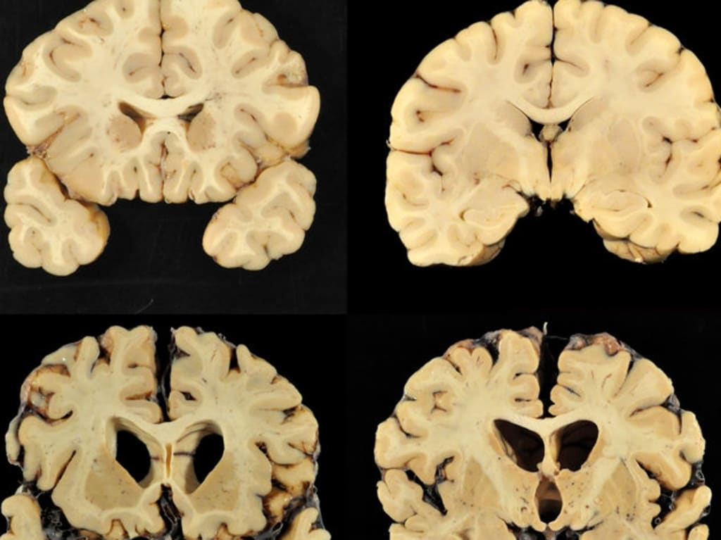 NRL 2019: Concussion shock as CTE found in brains of two ...
