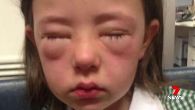 Children with allergies targeted by bullies who wave ...