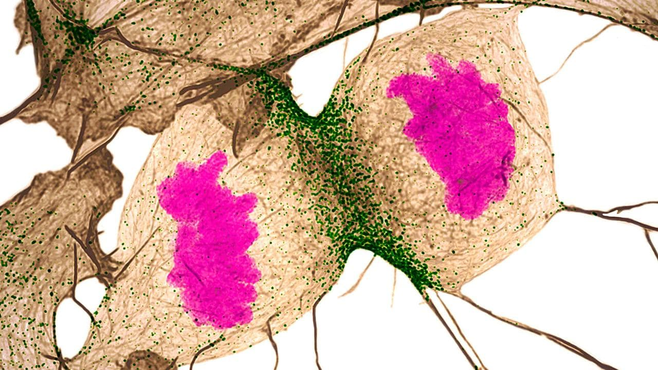 Human fibroblast undergoing cell division.