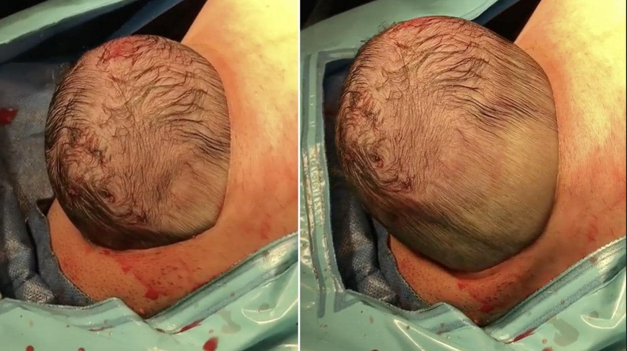 Newborn Head Moulding Photos Show What A Newborns Head Goes